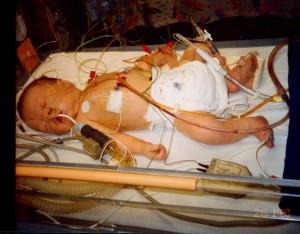 James at 8 days - immediately after surgery
